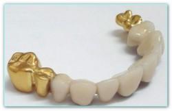 протезирование золотом