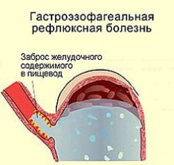 гастроэзофагеальная рефлюксная болезнь