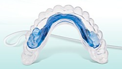 vyravnivanie zubov
