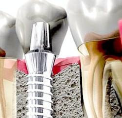 istorija implantacii zubov