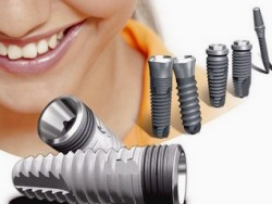 zubnye implantaty