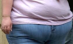 Больные ожирением