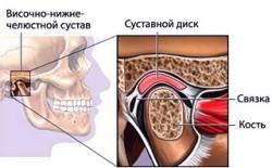 Долихосигма кишечника кто лечит