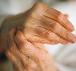 Ревматоидный артрит (РА)